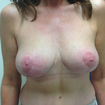45-54 year old woman treated with Breast Lift after 3697382