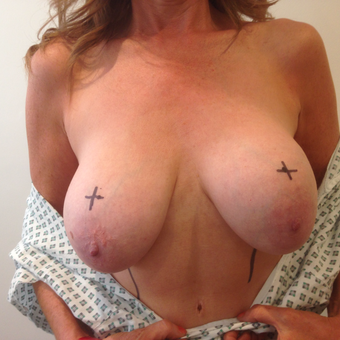 45-54 year old woman treated with Breast Lift before 3697382