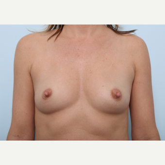Breast Augmentation before 3459722