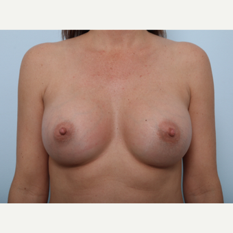 Breast Augmentation after 3459722