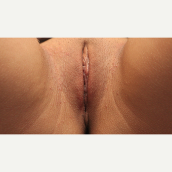 Labiaplasty: Clitoral Hood Reduction, Bilateral Labia Minora Reduction, Beveled Modified Linear after 1590879