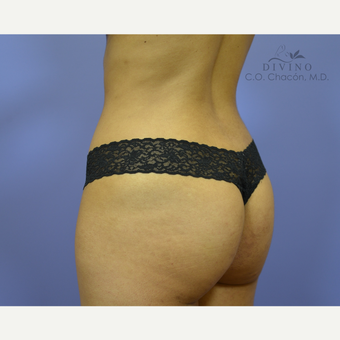25-34 year old woman treated with Liposuction after 3391722