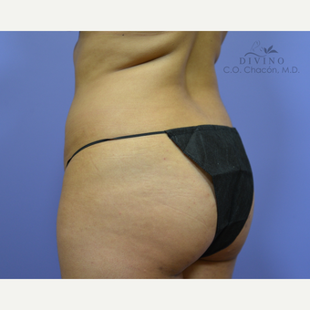 25-34 year old woman treated with Liposuction before 3391722