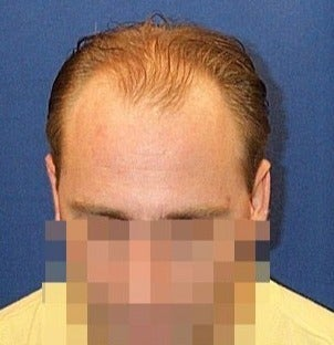 Hair Transplant Results - Patient before 1631128