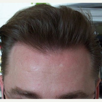 Hair Transplant Results - Patient after 1631128