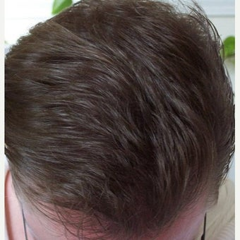 Hair Transplant Results - Patient 1631128