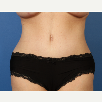 55-64 year old woman treated with Tummy Tuck after 3382951