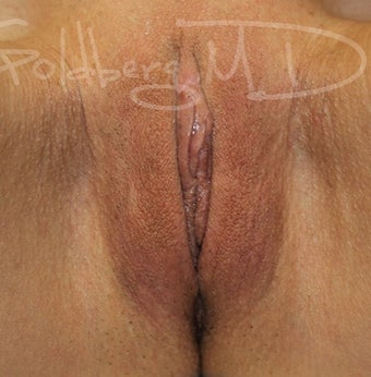 Labiaplasty after 3365868