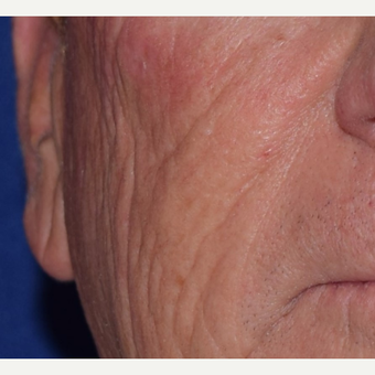 65-74 year old man treated with Radiesse for facial wrinkles before 3047960