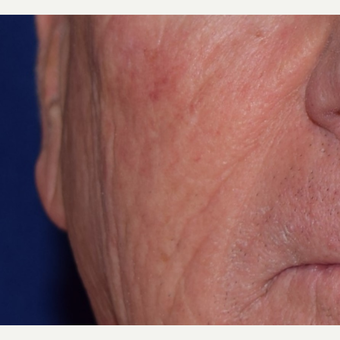 65-74 year old man treated with Radiesse for facial wrinkles after 3047960