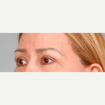 Eyelid Surgery after 3123672