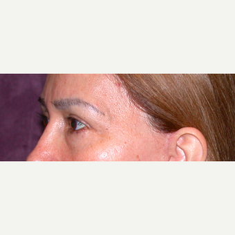 Eyelid Surgery before 3123672