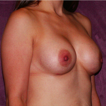 Breast Implants after 3033121
