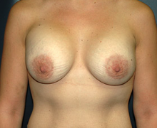 Breast Implants after 3544993