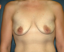 Breast Implants before 3544993
