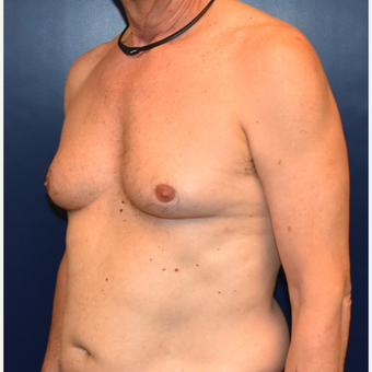 55-64 year old man treated with Male Breast Reduction before 3384885