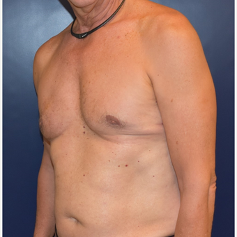 55-64 year old man treated with Male Breast Reduction after 3384885