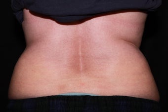 Laser Liposuction - Abdomen, Flanks before 1058404