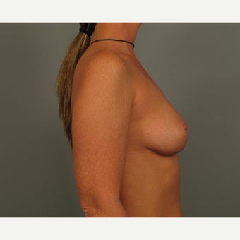 35-44 year old woman treated with Breast Augmentation before 2049831