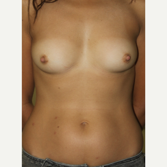 35-44 year old woman treated with Breast Augmentation 360 cc Silicone Implants before 3119604