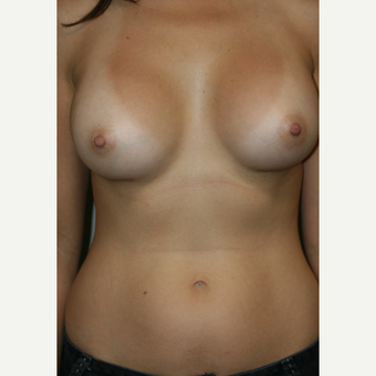35-44 year old woman treated with Breast Augmentation 360 cc Silicone Implants after 3119604