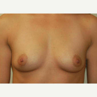 18-24 year old woman treated with Breast Implants before 3192503