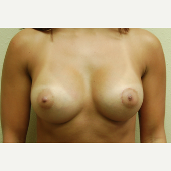 18-24 year old woman treated with Breast Implants after 3192503