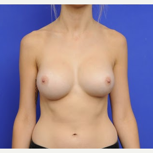 25-34 year old woman treated with Breast Augmentation after 3200443