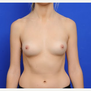 25-34 year old woman treated with Breast Augmentation before 3200443