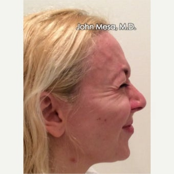 35-44 year old woman treated with Botox for Crow's Feet Wrinkles before 1977355