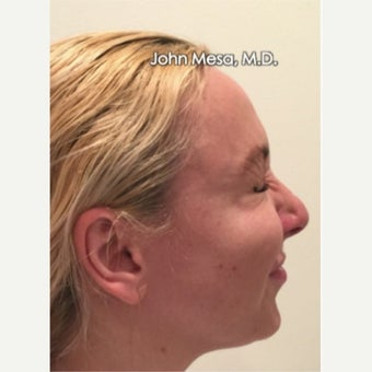 35-44 year old woman treated with Botox for Crow's Feet Wrinkles after 1977355