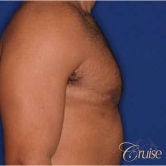 26 year old man treated with Male Breast Reduction after 3196770