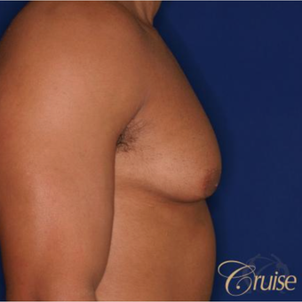 26 year old man treated with Male Breast Reduction before 3196770