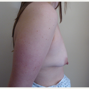 25-34 year old woman treated with Breast Lift before 3428123