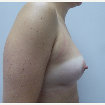 25-34 year old woman treated with Breast Lift after 3428123