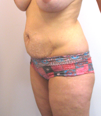 32 year old woman treated with Tummy Tuck before 3753994