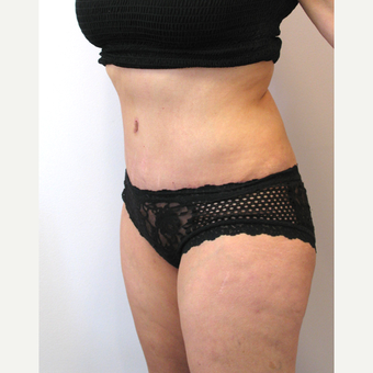 32 year old woman treated with Tummy Tuck after 3753994