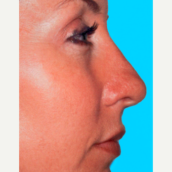 Rhinoplasty after 3814321