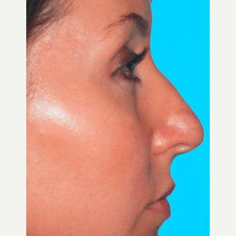 Rhinoplasty before 3814321