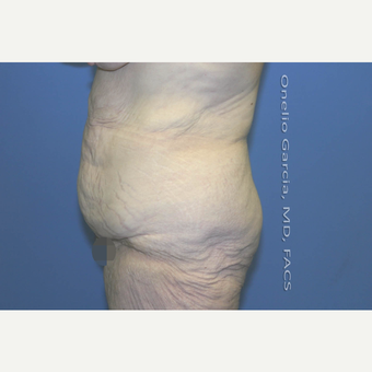 "45-54 year old woman treated with Body Lift-Circumferential ""Belt"" lipectomy + Vaser Liposuction before 3041539"