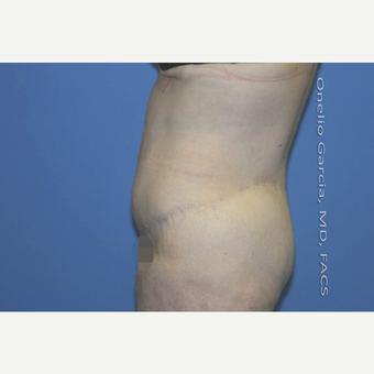 "45-54 year old woman treated with Body Lift-Circumferential ""Belt"" lipectomy + Vaser Liposuction after 3041539"