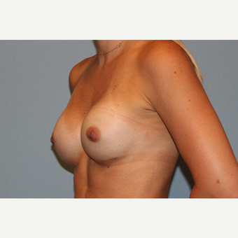 25-34 year old woman treated with Breast Augmentation after 3570050