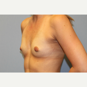 25-34 year old woman treated with Breast Augmentation before 3570050
