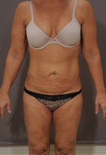 Tummy Tuck before 1323945