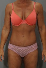 Tummy Tuck after 1323945