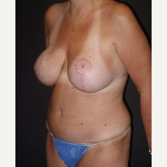 45-54 year old woman treated with Mommy Makeover after 3495833