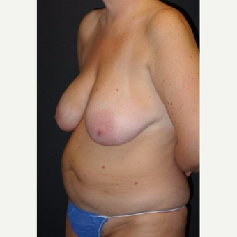 45-54 year old woman treated with Mommy Makeover before 3495833