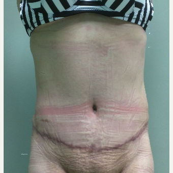 45-54 year old woman treated with Tummy Tuck after 3260224