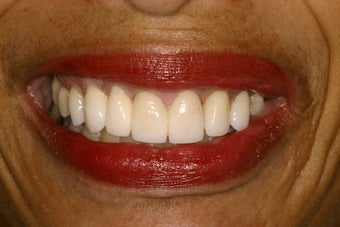 Porcelain Veneers after 111721