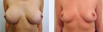 35 Year Old Female Breast Implant Removal Patient before 1346697